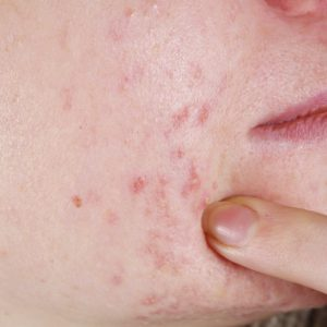 skin with the acne problems