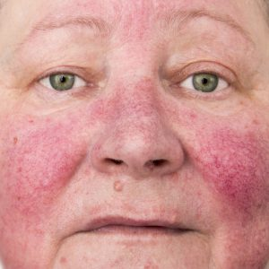 An elderly woman with skin condition rosacea characterized by facial redness, small and superficial dilated blood vessels, no make-up